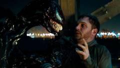 Tom Hardy komoly sérülést szenvedett el a Venom forgatásán kép