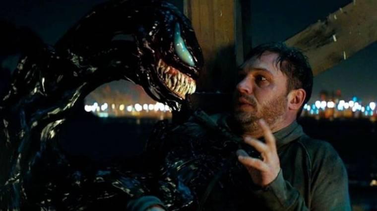 Tom Hardy komoly sérülést szenvedett el a Venom forgatásán bevezetőkép