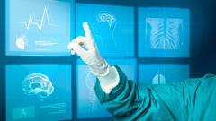 iToBoS: mesterséges intelligenciát használó eszköz készül a melanóma korai felismerésére kép