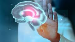 Gyógyító intelligencia kép