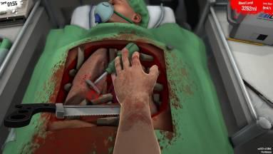 A játékok segítségével a sebészek jobban tudnak műteni? fókuszban