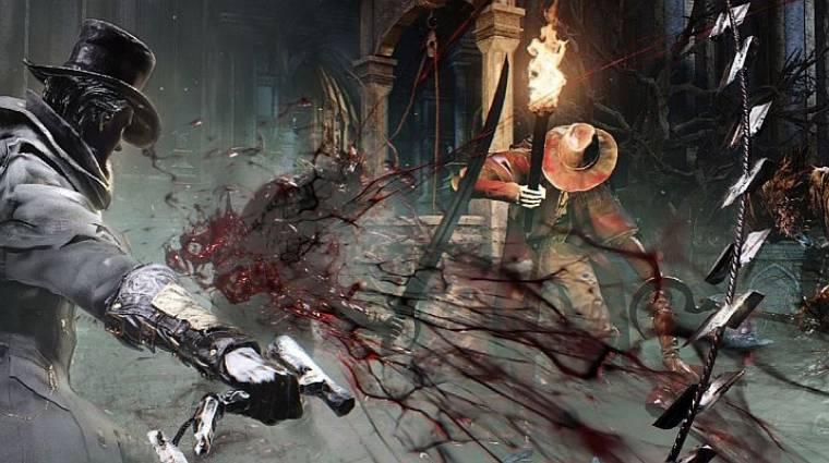 Bloodborne - közel százan készítik a zenét (videó) bevezetőkép