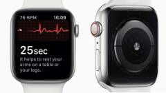 Ismét életet mentett egy Apple Watch kép