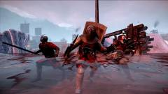 Chivalry: Medieval Warfare - Xbox One-on gyengébb, mint PS4-en kép