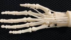Háborús sérüléseket gyógyít a 3D nyomtató kép