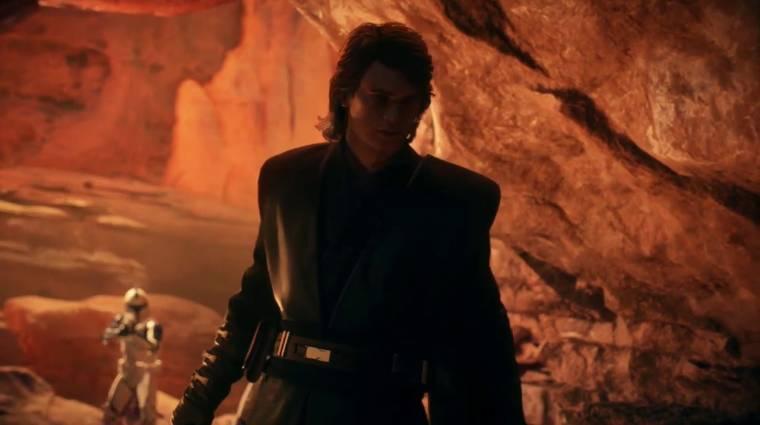 Star Wars Battlefront II - nemsokára Anakin Skywalkerrel is apríthatunk bevezetőkép