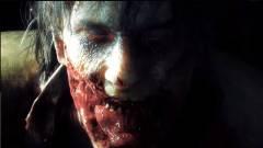 E3 2018 - eldobjuk az agyunkat a Resident Evil 2 Remastered trailerétől kép