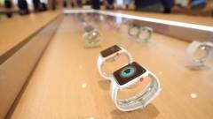 Jelzi a rendellenes szívműködést az Apple Watch kép