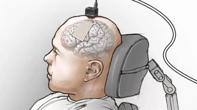 """Egy implantátum segíthet újra """"beszélni"""" a lebénult betegeknek kép"""