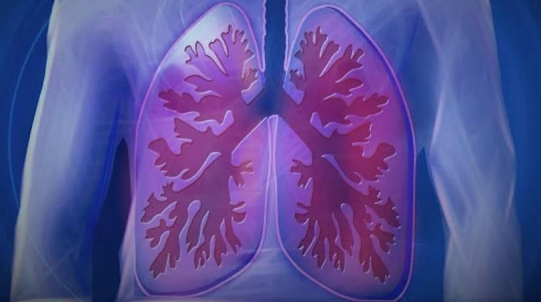 Az Óbudai Egyetemen készülő lélegeztetőgépet egyszerre 50-en is használhatnák kép