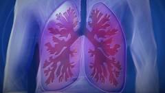 Tömeg-lélegeztetőgépet fejlesztenek az Óbudai Egyetemen kép