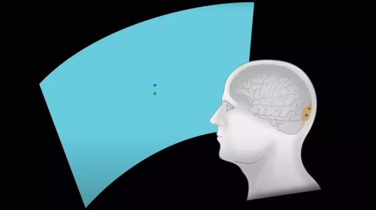 Nagy bejelentés várható Elon Musk agy-számítógép projektje kapcsán kép
