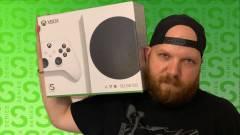 Kibontottuk a valaha készült legkisebb Xboxot! kép