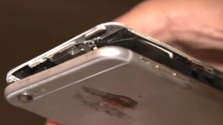 Az arcába robbant az iPhone-ja, beperelte az Apple-t egy texasi férfi kép