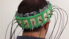 Okossisak segíthet megállapítani a stroke típusát és súlyosságát kép