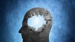 Lézerrel gyógyítanák az Alzheimer- és a Parkinson-kórt kép