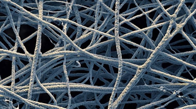 Jöhetnek a nanoszálas kötszerek kép