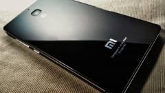 Kémkedik a felhasználói után a Xiaomi kép