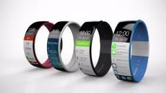 Külső cégek is fejleszthetnek iWatch-ra kép