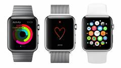 Emiatt nem éri meg fejest ugrani egy Apple Watch-ba kép