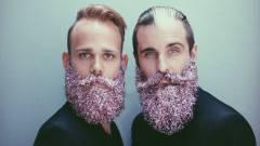 A csillámos szakáll az új közösségi trend kép