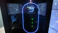 Bármilyen betegségből kigyógyít az IBM Watson szuperszámítógépe kép