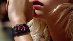 Ha okosóra, akkor még mindig Apple Watch kép