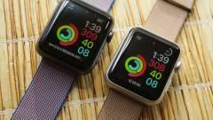 Az Apple Watch még mindig a legjobb kép