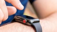 Az Apple Watch nem bírja a kórházakat kép