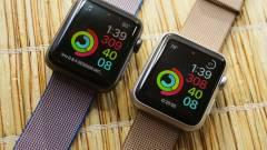 Az Apple Watch megmentette az okosórákat kép