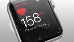 Újabb életet mentett az Apple Watch kép