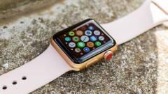 Nem lesz fizikai gomb az új Apple okosórán kép