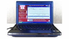 6 vírusnak hála több mint 1 millió dollárt ért ez a roncs laptop kép