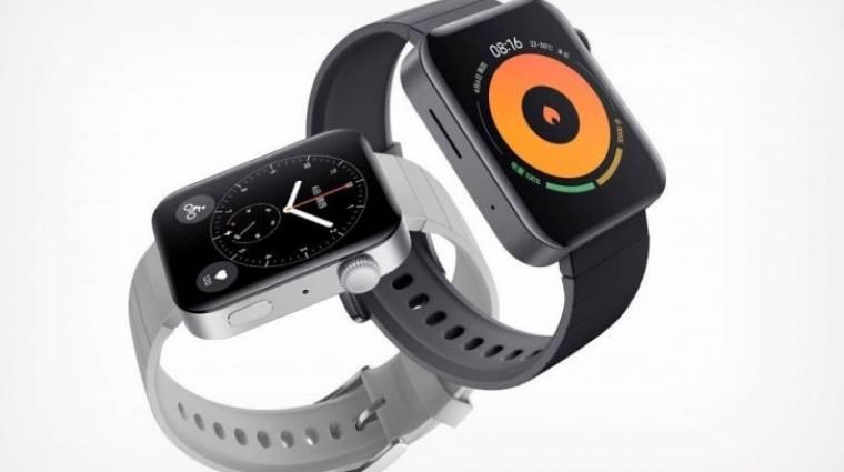 Itt a Xiaomi okosórája, a Mi Watch kép